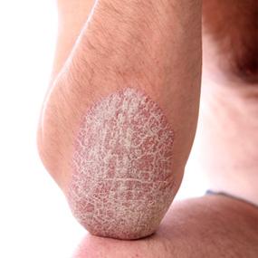 Psoriasis-plaque