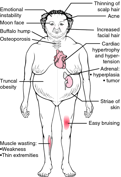 This is an image of someone with Cushings Syndrome (prolonged exposure to elevated cortisol). It looks like a lot of people we see these days.